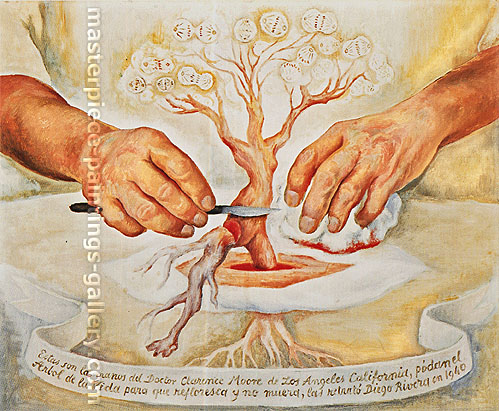 Diego Rivera, The Hands of Dr Moore | Las Manos del Dr Moore, 1940, oil on canvas, 18 x 22 in. / 45.8 x 55.9 cm, US$330